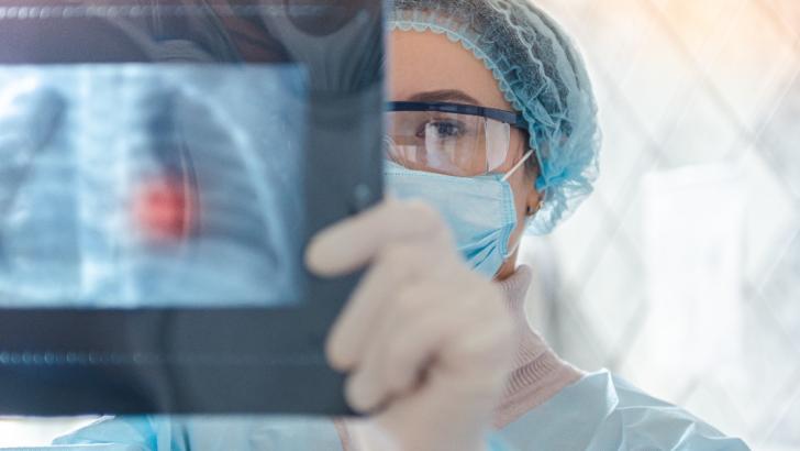 medico osserva una radiografia ai polmoni